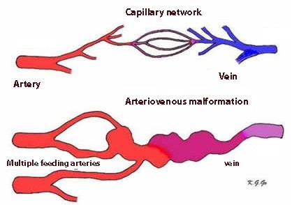 Arteriovenous malformation in hht versus a normal capillary network