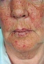 Teleangiectases in the skin of an HHT patient